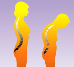 susu kedelai cegah osteoporosis menopause